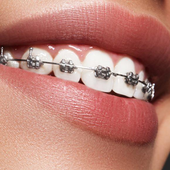 Cele mai frecvente întrebări despre tratamentul ortodontic