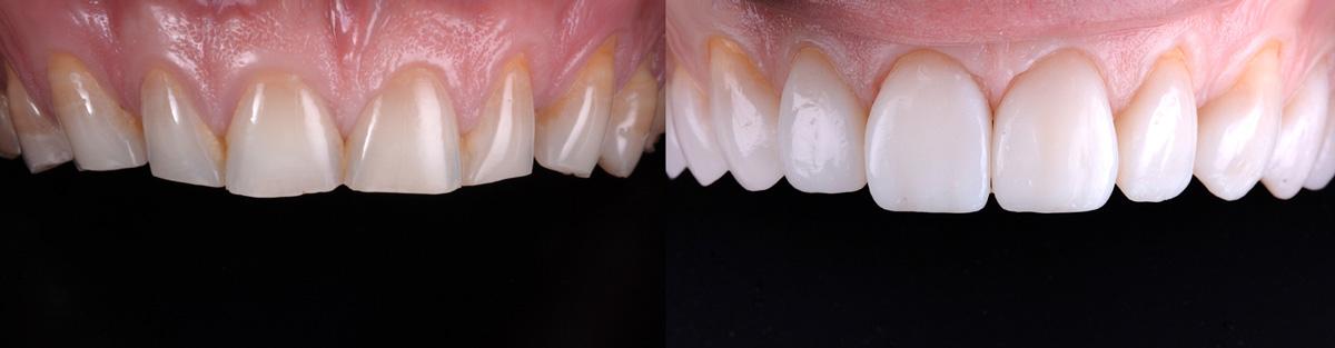 Articol fatete dentare clinica lazar