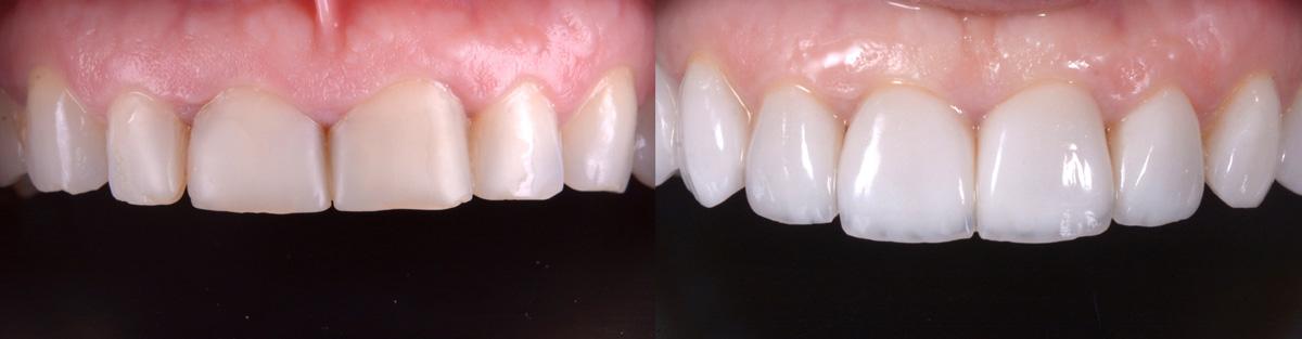 Articol fatete dentare clinicalazar
